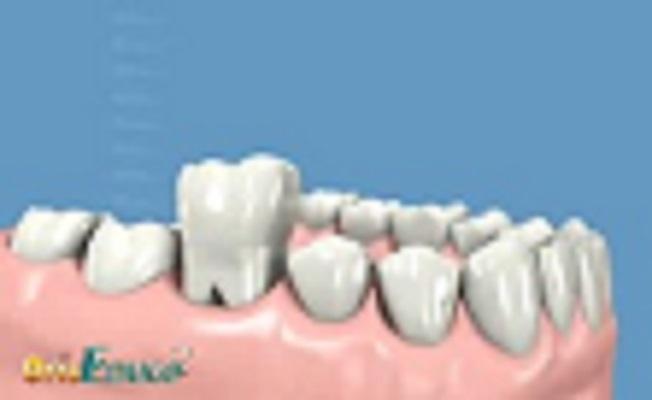 https://www.dentista-genova-dottpiccardo.it/implantologia.html